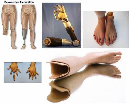 artificial limbs at rs 50000 piece ramgopalpet secunderabad