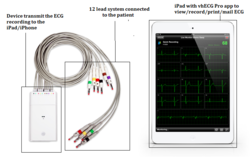 ECG Monitoring Machine