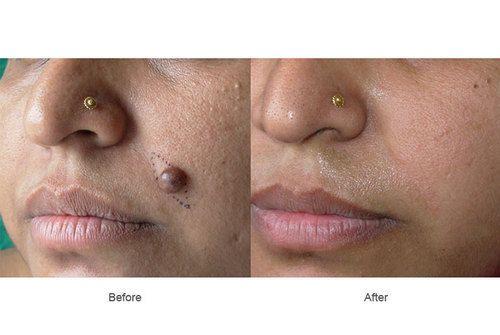 Laser Treatment For Mole Removal Chennai Tamil Nadu Id