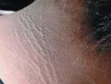 Acanthosis Nigricans Homeopathic Treatments Services