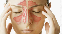 Sinus Treatment Services