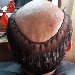 Face looks hair clinic hair weaving