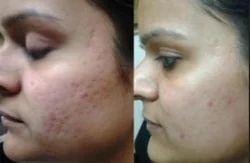 Acne Scar Reduction Treatment Services