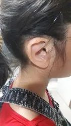 Silicone Ear Prosthesis