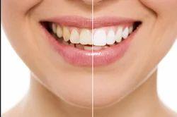Teeth Cleanup