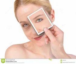 Acne Spots Treatment Service