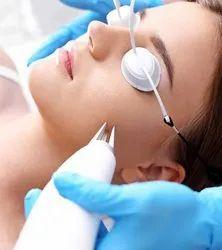 Latest Acne Scars Laser Treatment