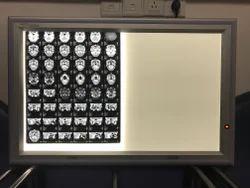 X Ray Film Viewer