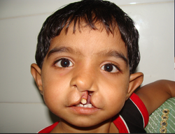 Re Constructive Surgery For Adults Born Cleft Lip