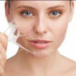 Chemical Peel Treatment Service