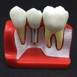 Dental Implant Analysis Crown Bridge Demonstration Model