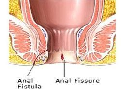 For Fissure in anus