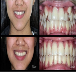 Orthodontics Treatment Service