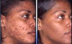 Medicine Advance Treatment Of Acne And Discoloration