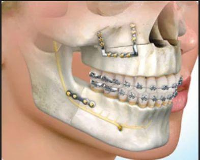 Oral And Maxillofacial Treatment in Palayamkottai Market