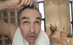 Male Pattern Of Baldness Treatment Services