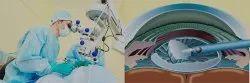 Glaucoma Surgery Treatment Service