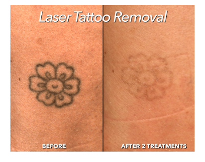 Laser For Tattoo Removal Treatment Service in Jhilmil Colony,, Delhi ...