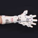 Wrist Turn Buckle Splint