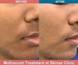 Molluscum Extraction Treatment