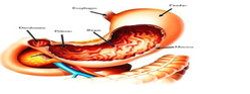 Gastric Cancer Treatment