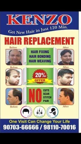 Non-Surgical Hair Replacement / Hair Weaving / Hair Bonding