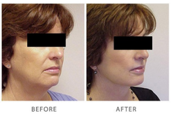 Face Lift Treatment Service
