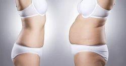 Turboslim Weight Loss Service, Weight Management Service - VLCC