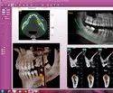 Dental CBCT