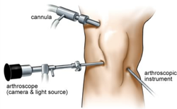 Arthroscopic Meniscus Surgery Health Care Service