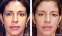 Cosmelan Peel for Skin Tightening Treatment