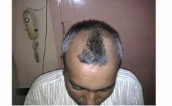Hairfall Baldness Alopecia Services
