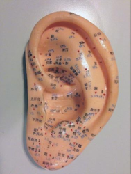 Acupuncture Effective For Treating Hearing Loss
