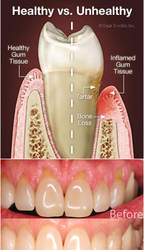 Periodontal Surgeries Gum Surgery