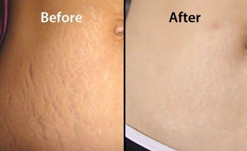 11am 2pm 3 6pm Stretch Marks Treatment Redians Skin