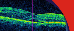Rop Screening And Laser Therapy Service