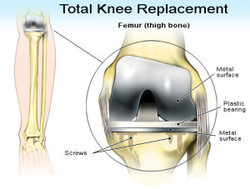 Knee Replacement Service In Hyderabad