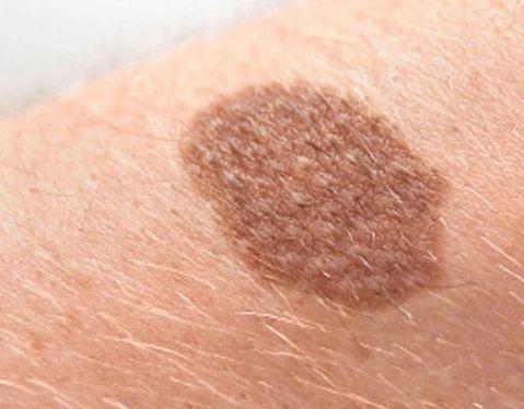 Skin Cancer Treatment in Jaipur, Mansarovar by Saket Hospital | ID:  18750123091
