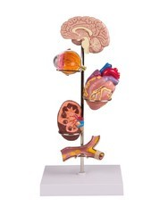 Hypertension Anatomy Model