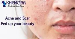 Acne And Scar Treatment Services