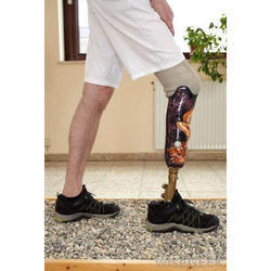Below Knee Artificial Leg | Evolution Health Care Private Limited