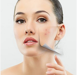 Acne Treatment Services