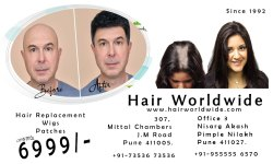 10 Am To 10 Pm Unisex hair replacement non surgical