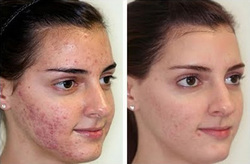 Skin Polishing Treatment