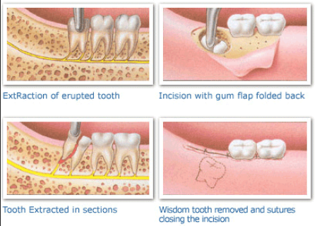 Wisdom Tooth Removal Service in Vadodara, Muval Cross Road