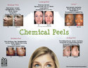 Chemical Peels Treatment Service