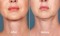 Get Rid of Double Chin with Botox Treatment