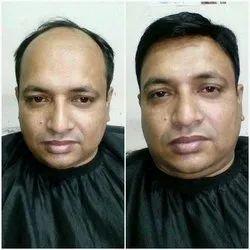 Unisex Hair Bonding Services