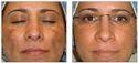 Cosmelan Peel Treatment For Deep Scar And Pigmentation In Chennai