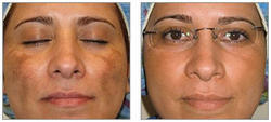 Cosmelan Peel Treatment For Deep Scar And Pigmentation In Chennai